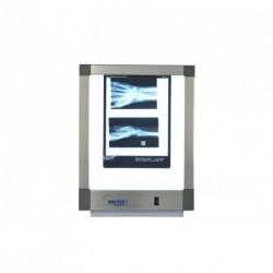 Négatoscope Standard 1 plage